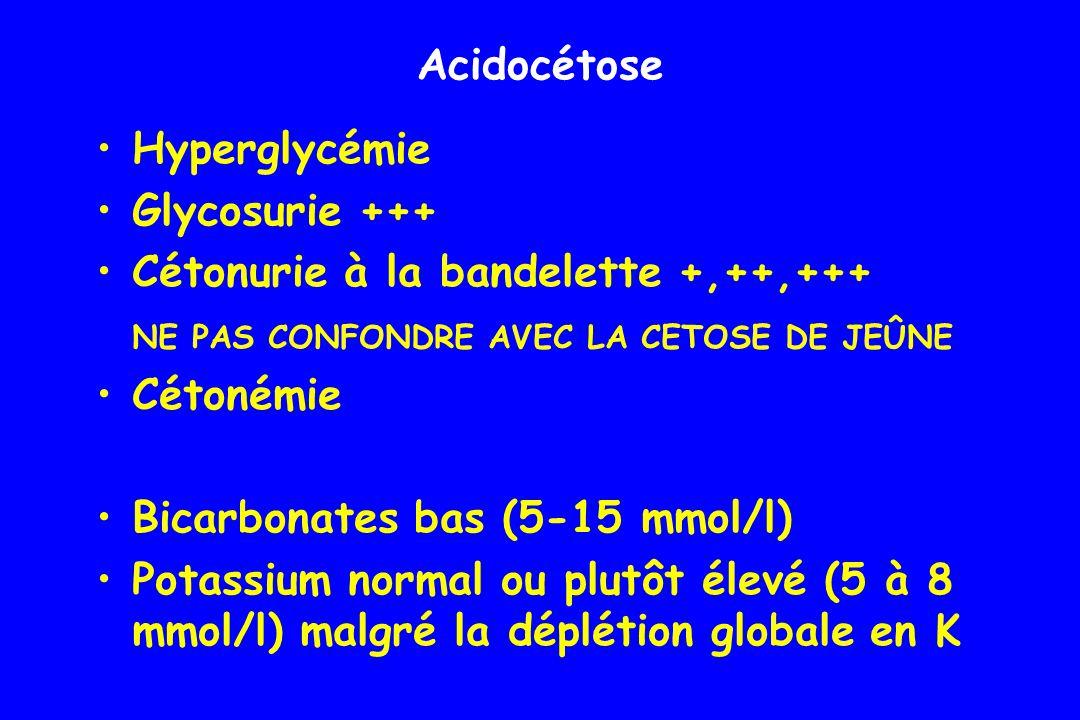 Acidocétose Hyperglycémie. Glycosurie +++ Cétonurie à la bandelette +,++,+++ NE PAS CONFONDRE AVEC LA CETOSE DE JEÛNE.
