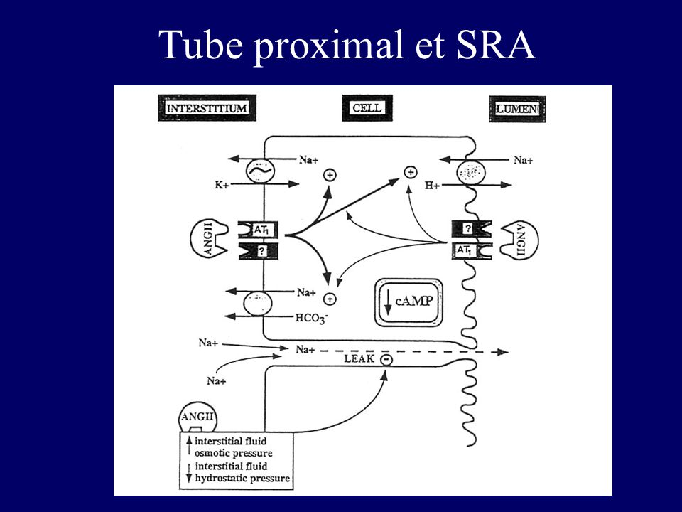 Tube proximal et SRA