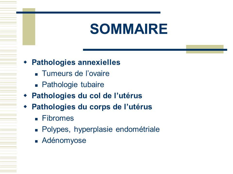 SOMMAIRE Pathologies annexielles Tumeurs de l'ovaire