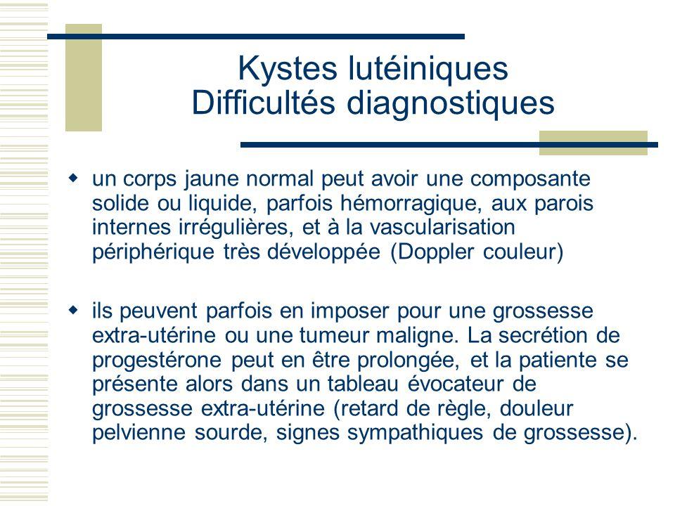 Kystes lutéiniques Difficultés diagnostiques