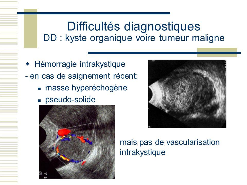 Difficultés diagnostiques DD : kyste organique voire tumeur maligne