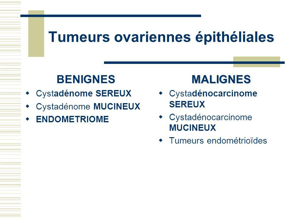 Tumeurs ovariennes épithéliales