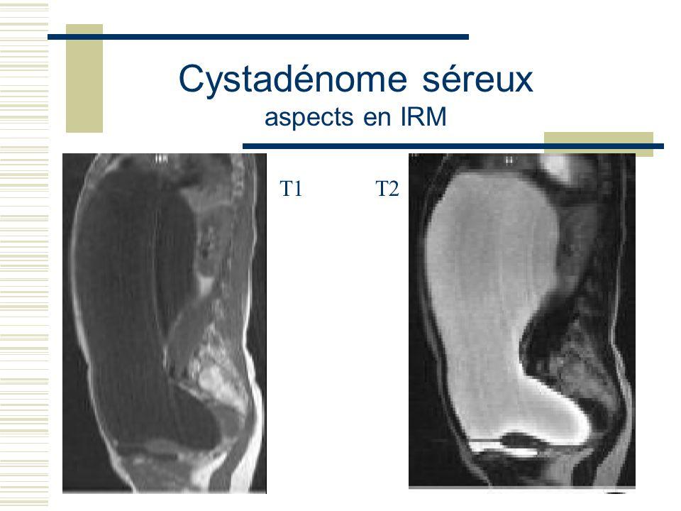 Cystadénome séreux aspects en IRM