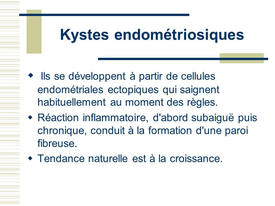 Kystes endométriosiques