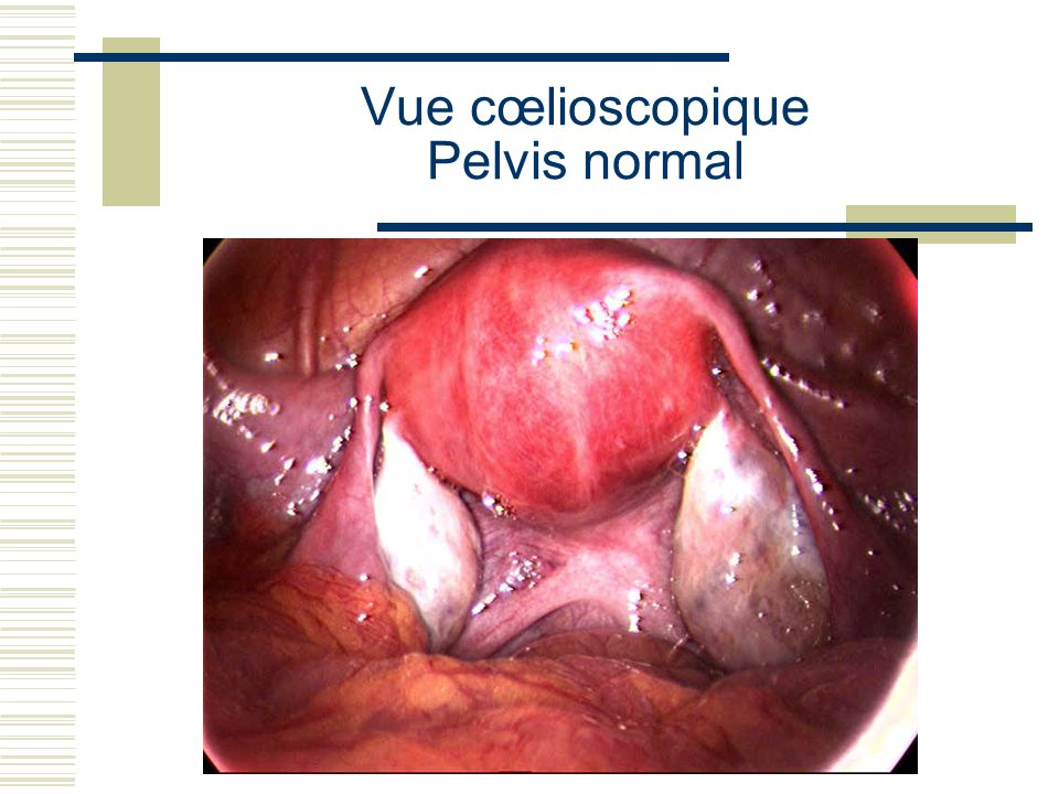 Vue cœlioscopique Pelvis normal