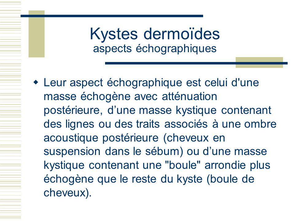 Kystes dermoïdes aspects échographiques