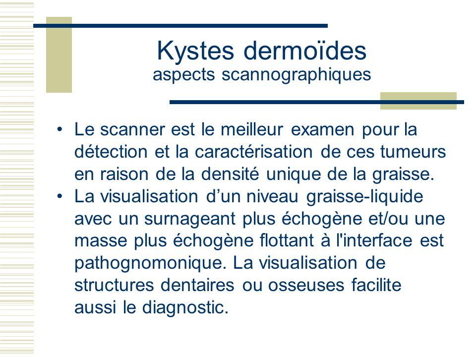 Kystes dermoïdes aspects scannographiques