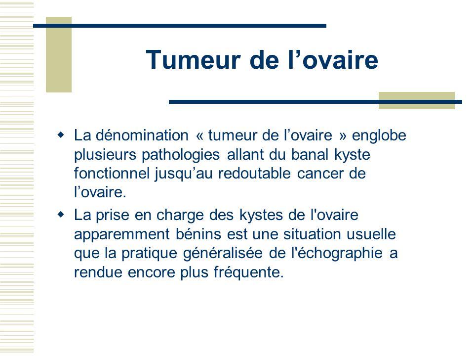 Tumeur de l'ovaire
