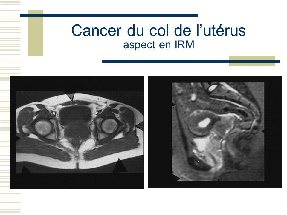 Cancer du col de l'utérus aspect en IRM