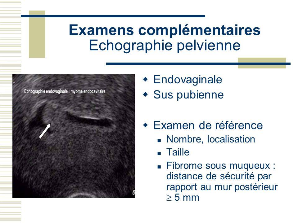 Examens complémentaires Echographie pelvienne