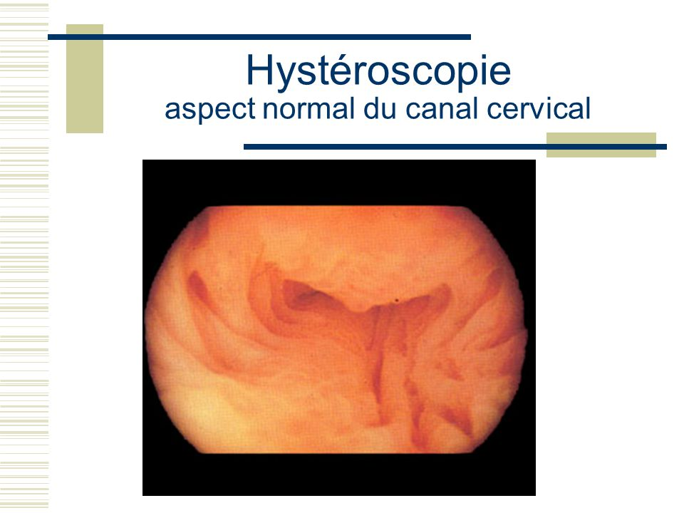 Hystéroscopie aspect normal du canal cervical