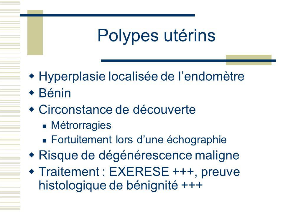 Polypes utérins Hyperplasie localisée de l'endomètre Bénin