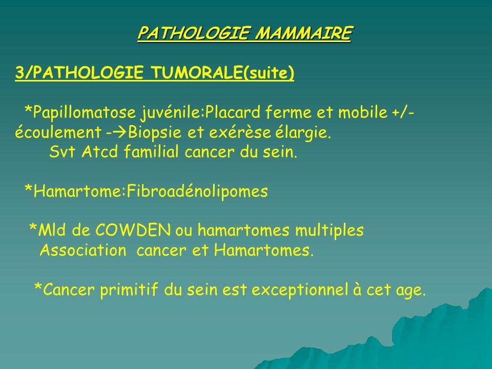 PATHOLOGIE MAMMAIRE 3/PATHOLOGIE TUMORALE(suite) *Papillomatose juvénile:Placard ferme et mobile +/-écoulement -Biopsie et exérèse élargie.