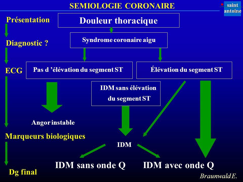 Douleur thoracique IDM sans onde Q IDM avec onde Q