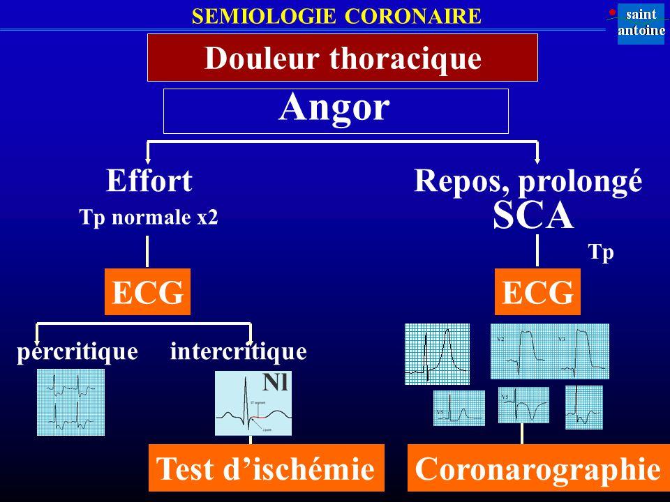 Angor SCA Douleur thoracique Effort Repos, prolongé ECG ECG