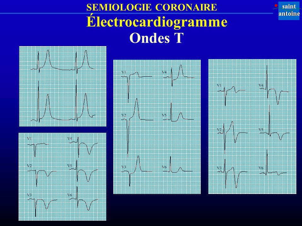 Électrocardiogramme Ondes T