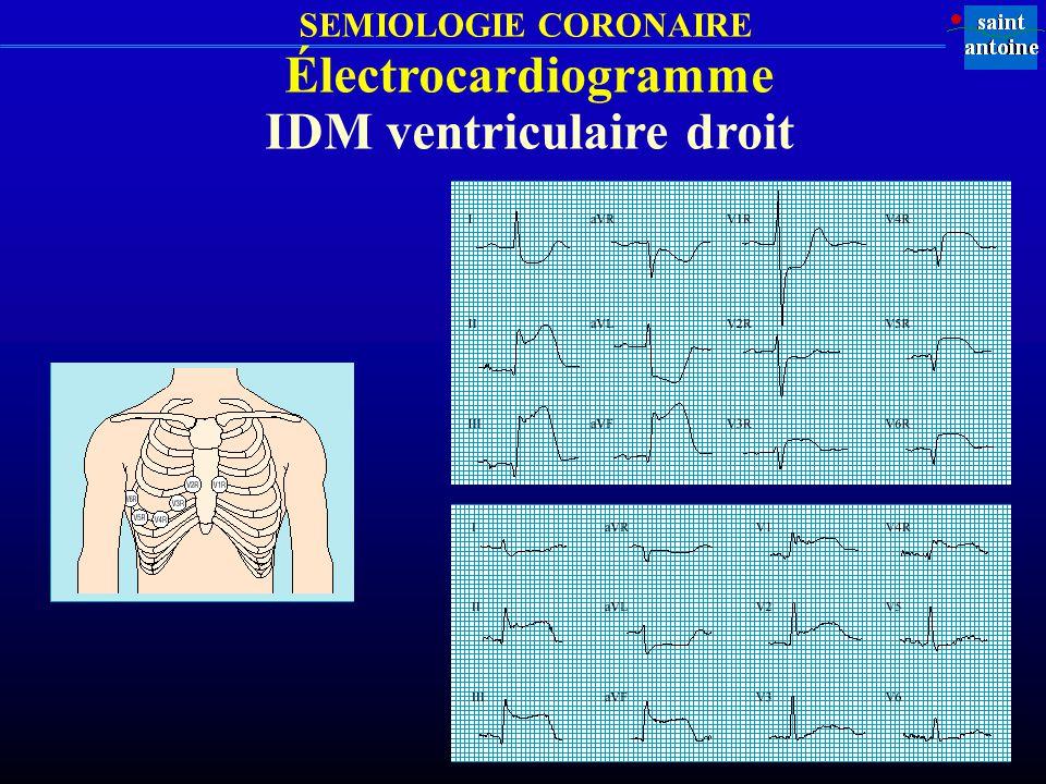 IDM ventriculaire droit