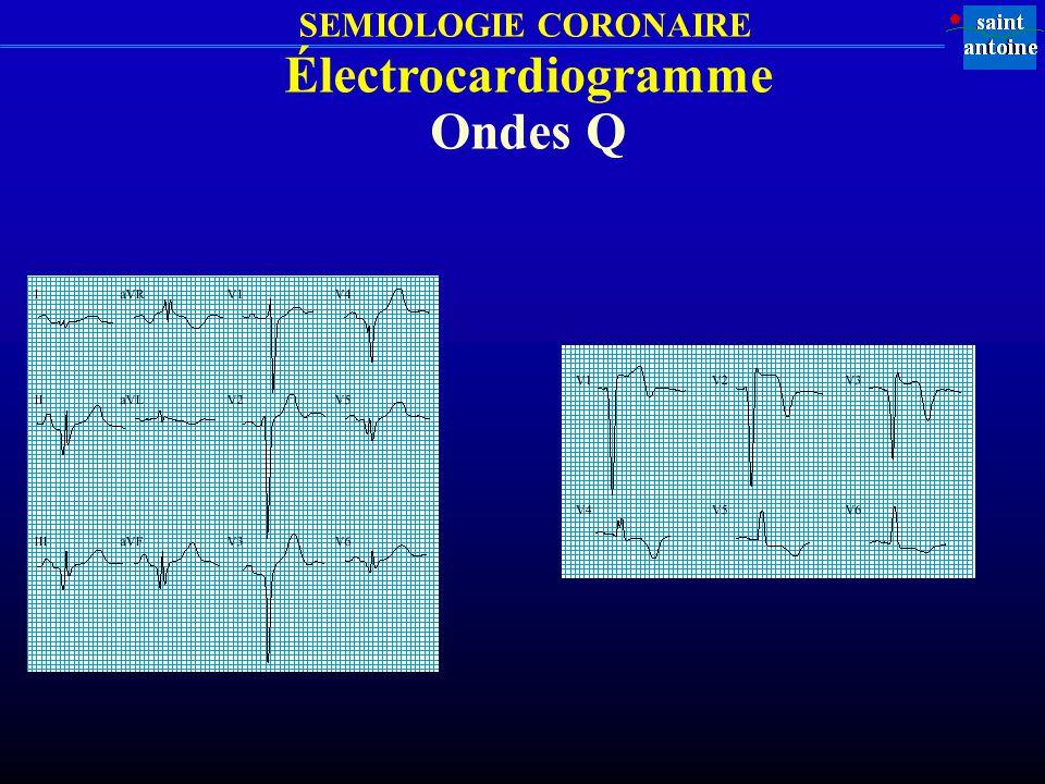 Électrocardiogramme Ondes Q