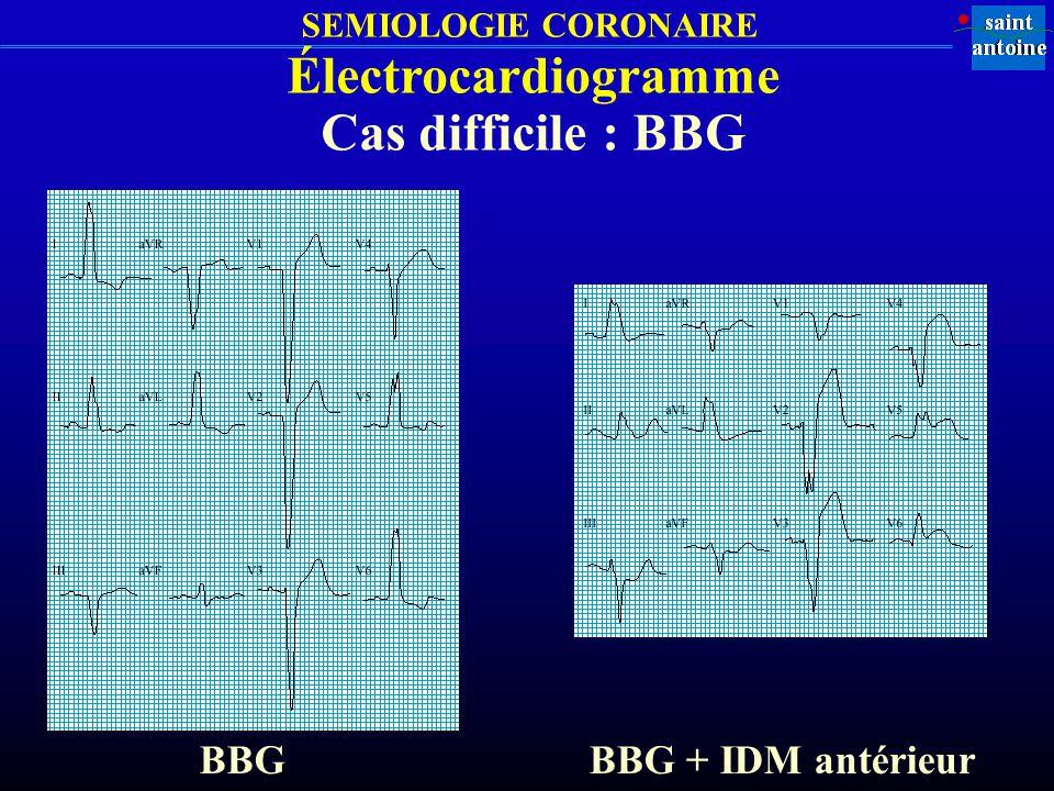 Électrocardiogramme Cas difficile : BBG