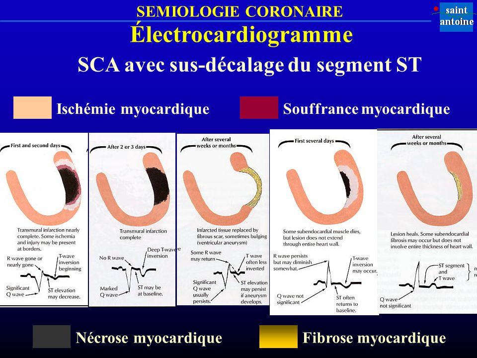 Électrocardiogramme SCA avec sus-décalage du segment ST