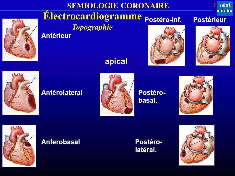 Électrocardiogramme Topographie apical Postéro-inf. Postérieur