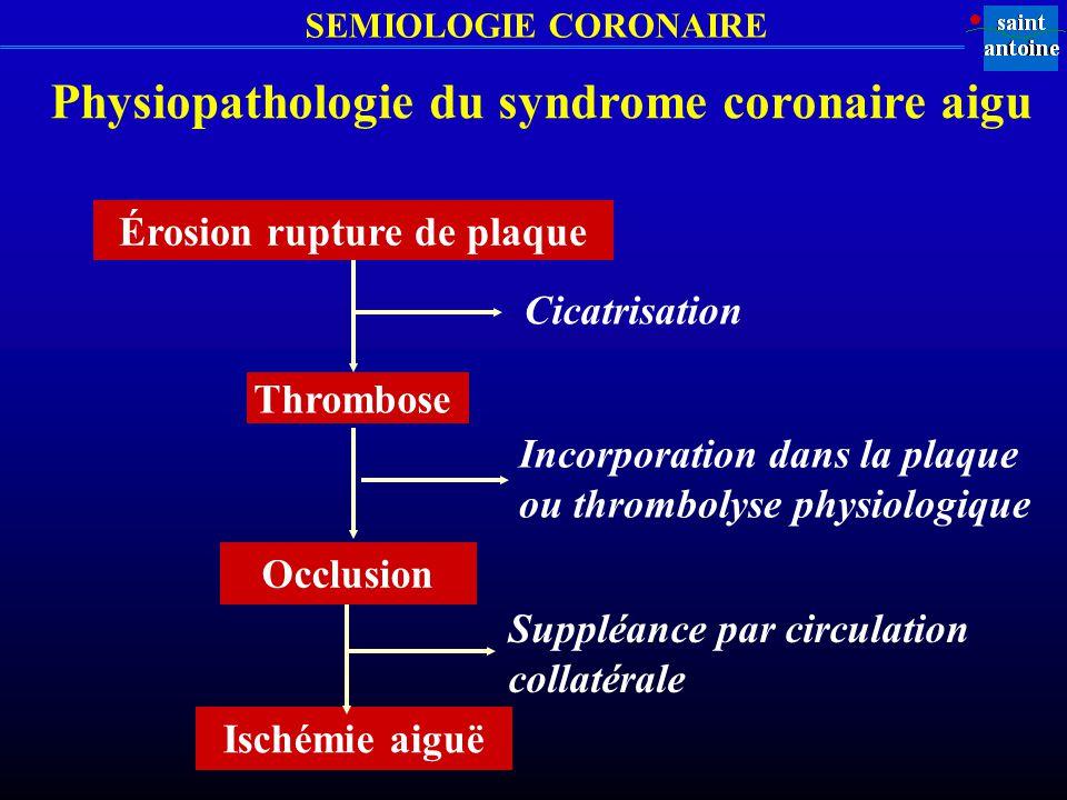 Physiopathologie du syndrome coronaire aigu Érosion rupture de plaque