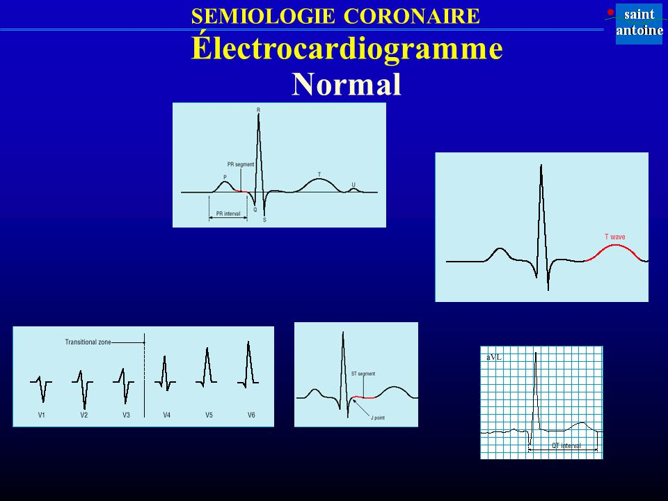 Électrocardiogramme Normal