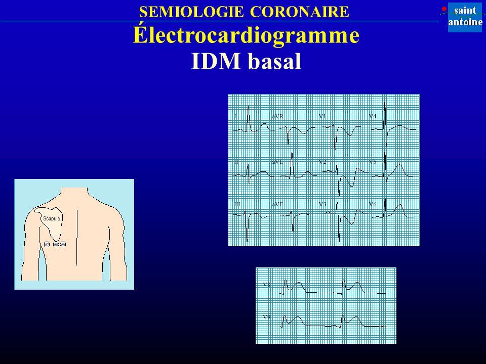 Électrocardiogramme IDM basal