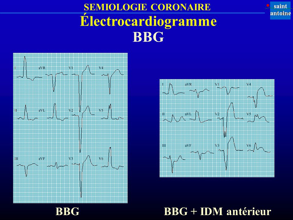 Électrocardiogramme BBG