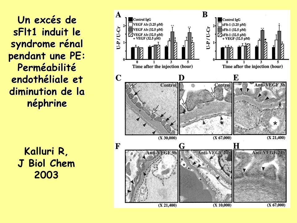 Un excés de sFlt1 induit le syndrome rénal pendant une PE: