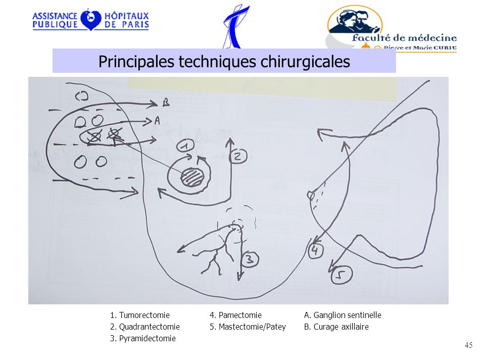 Principales techniques chirurgicales