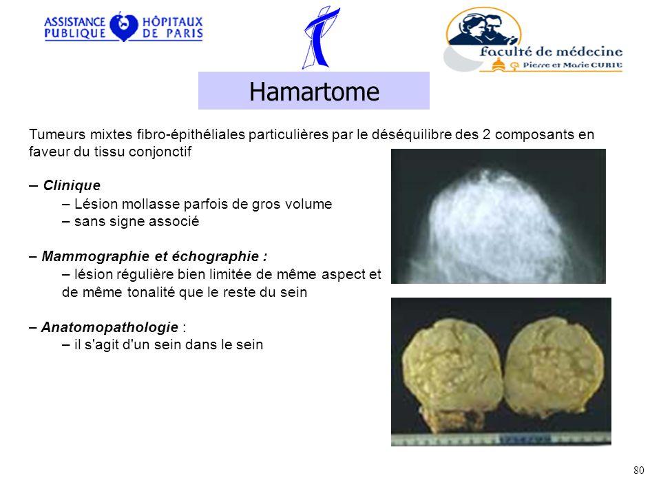 Hamartome Tumeurs mixtes fibro-épithéliales particulières par le déséquilibre des 2 composants en faveur du tissu conjonctif.