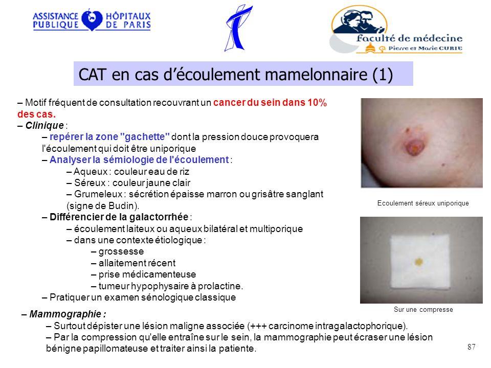 CAT en cas d'écoulement mamelonnaire (1)