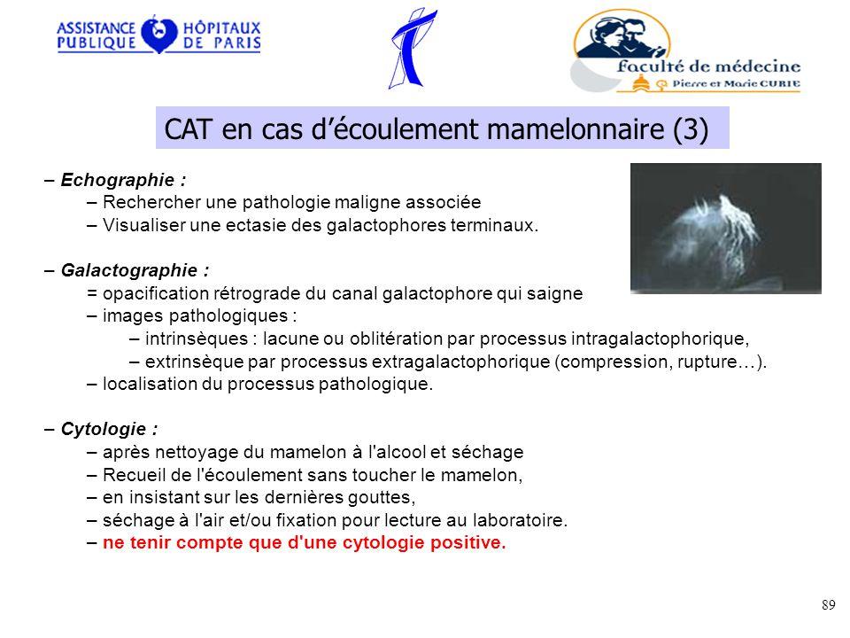 CAT en cas d'écoulement mamelonnaire (3)