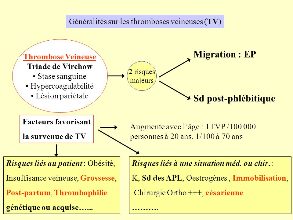 Migration : EP Sd post-phlébitique