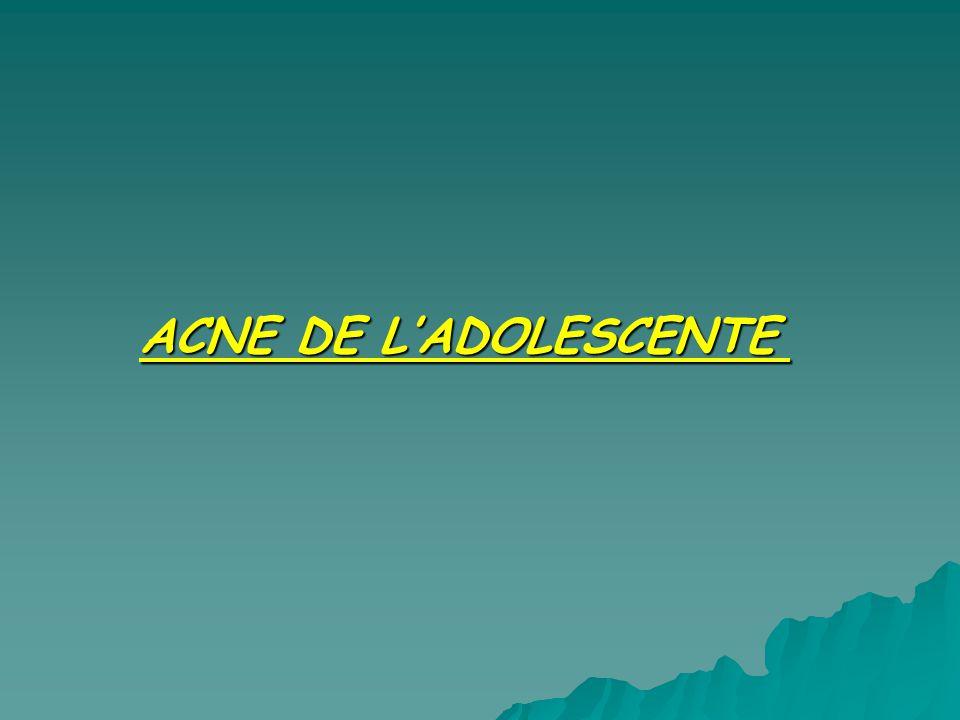 ACNE DE L'ADOLESCENTE