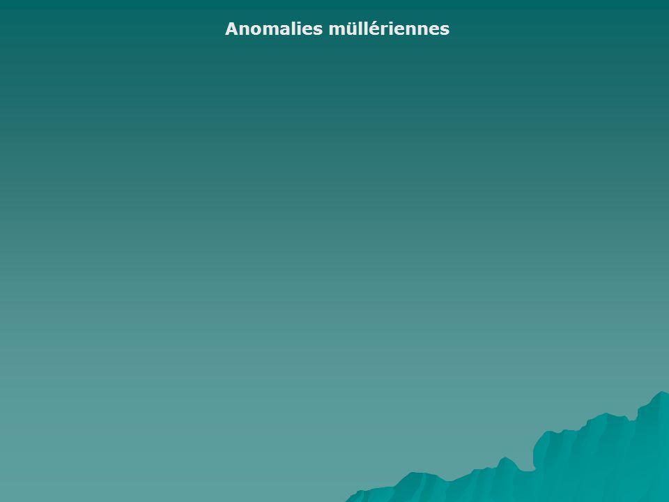 Anomalies müllériennes