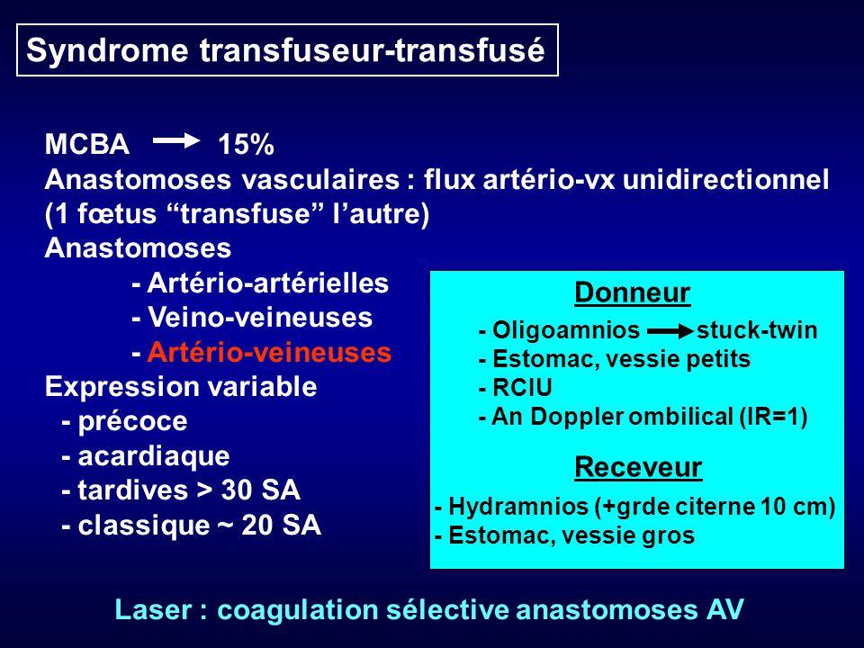 Syndrome transfuseur-transfusé