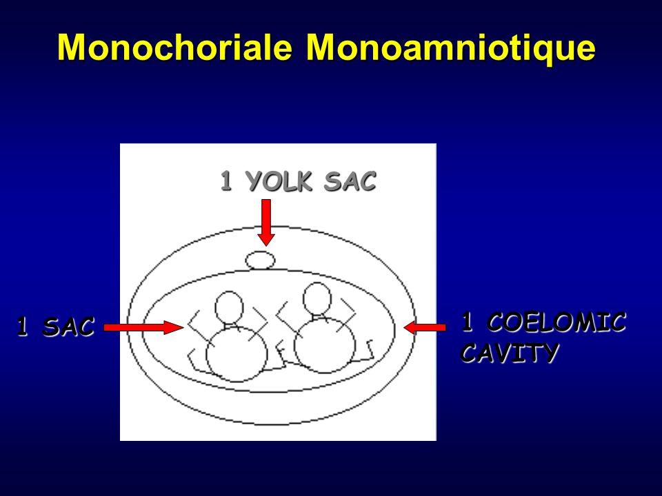 Monochoriale Monoamniotique