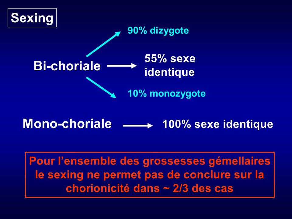 Sexing Bi-choriale Mono-choriale 55% sexe identique