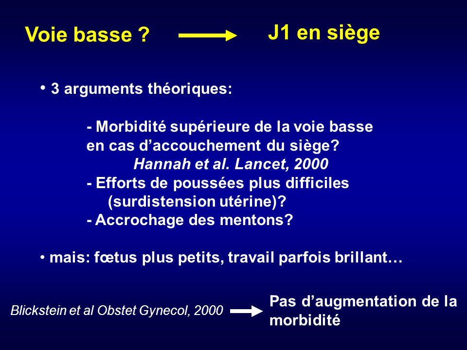 J1 en siège Voie basse 3 arguments théoriques: