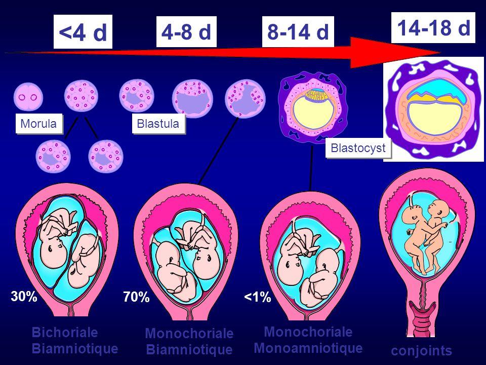 <4 d 14-18 d 4-8 d 8-14 d 30% 70% <1% Bichoriale Biamniotique