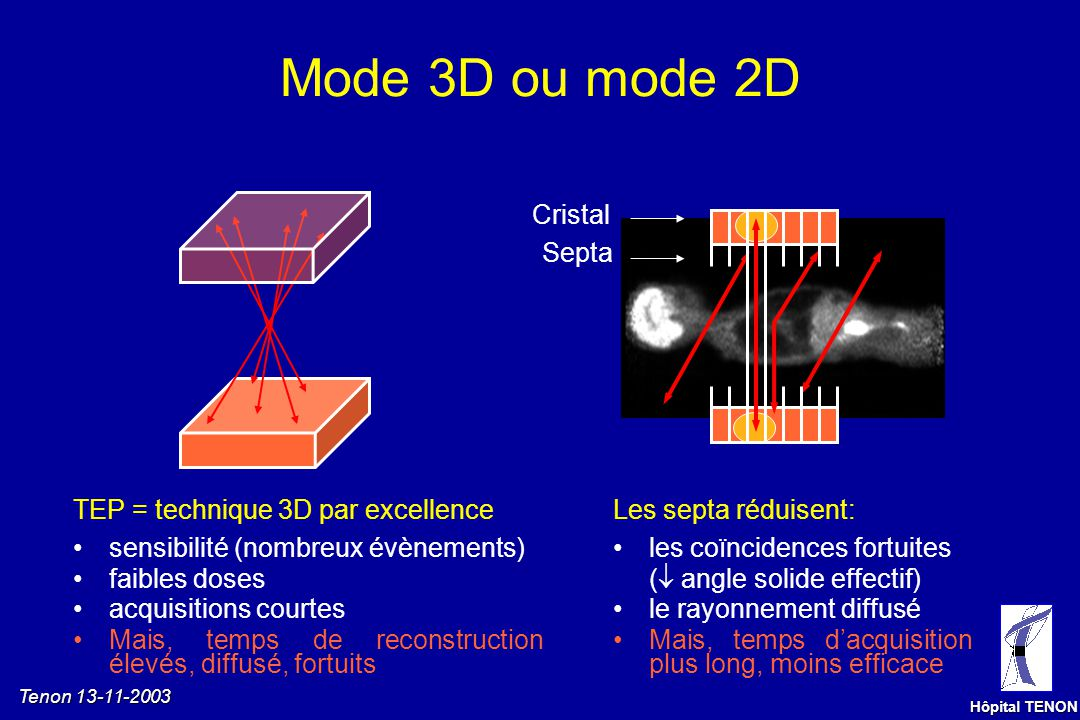 Mode 3D ou mode 2D Cristal Septa TEP = technique 3D par excellence