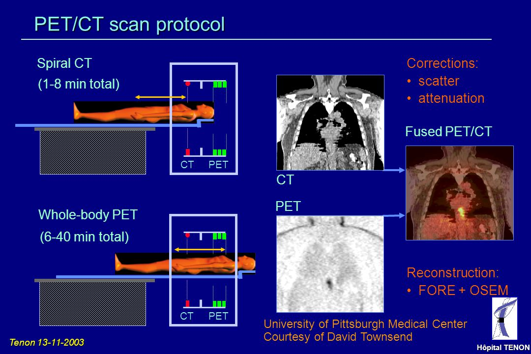 PET/CT scan protocol Spiral CT Corrections: scatter attenuation