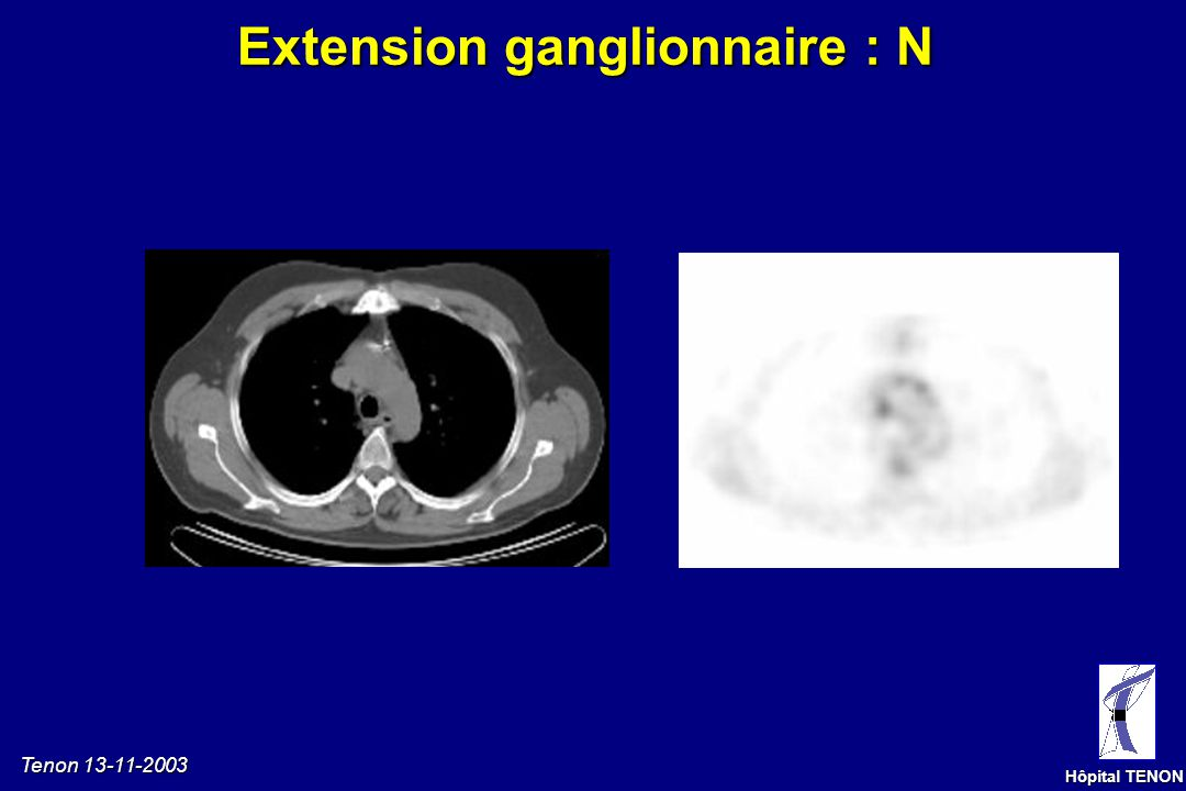 Extension ganglionnaire : N