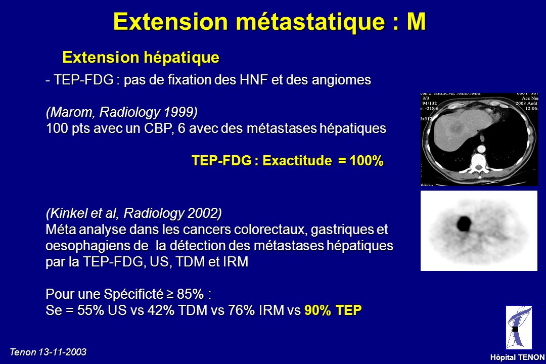 Extension métastatique : M