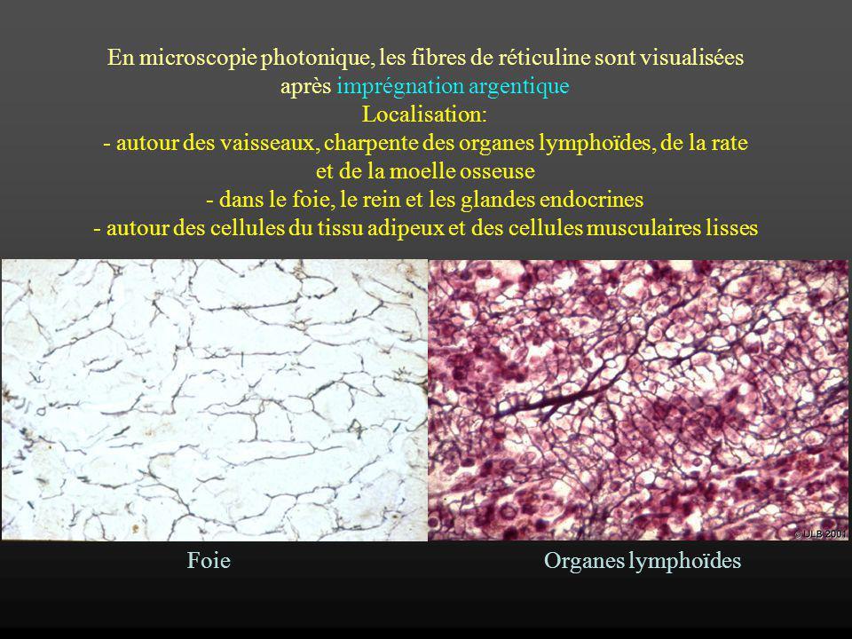 En microscopie photonique, les fibres de réticuline sont visualisées