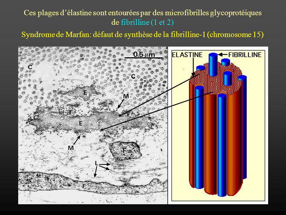 Ces plages d'élastine sont entourées par des microfibrilles glycoprotéiques