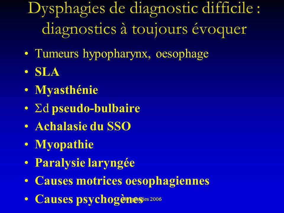 Dysphagies de diagnostic difficile : diagnostics à toujours évoquer