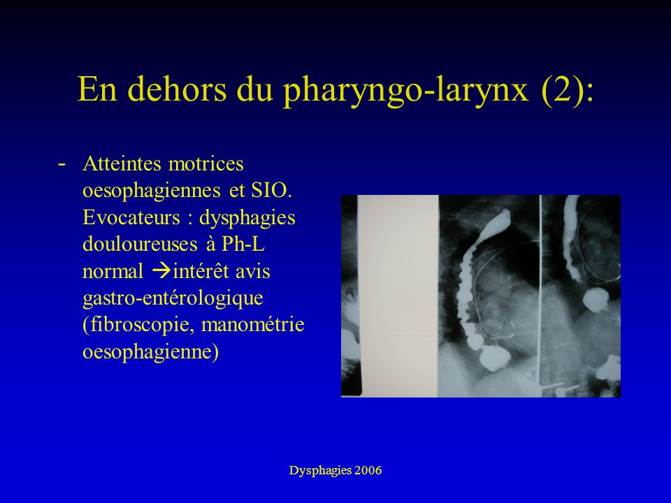 En dehors du pharyngo-larynx (2):